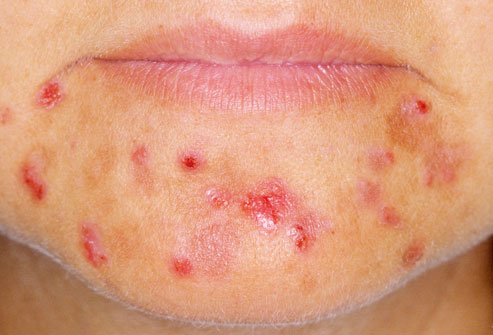 12dermnet_rm_photo_of_woman_with_severe_acne