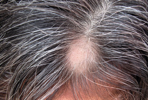 13photolibrary_rf_photo_of_alopecia_areata