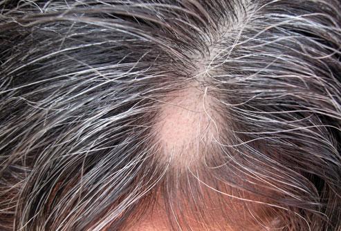 13photolibrary_rf_photo_of_alopecia_areata