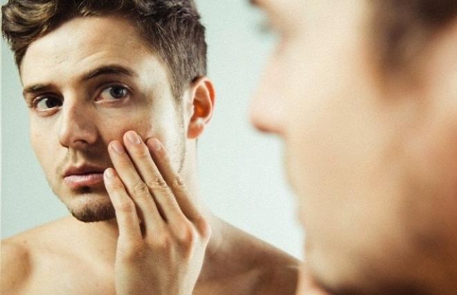 acne-634x410.jpg