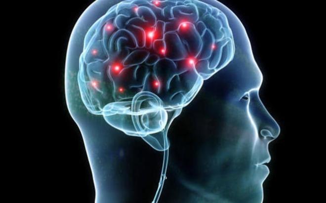 brain.medium.jpg